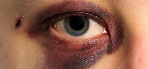 make-black-eyes-bruises-hickeys-fade-heal-faster-5-different-ways.1280x600